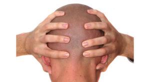 stress-head-185